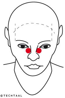 neus-acupunctuur-geldrop